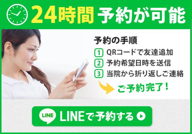 24時間予約が可能LINEで予約する
